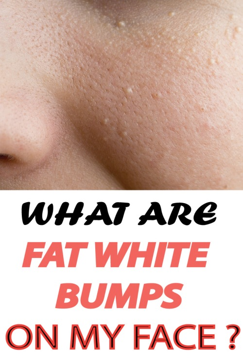 What-are-WHITE-FAT-BUMPS-on-my-face